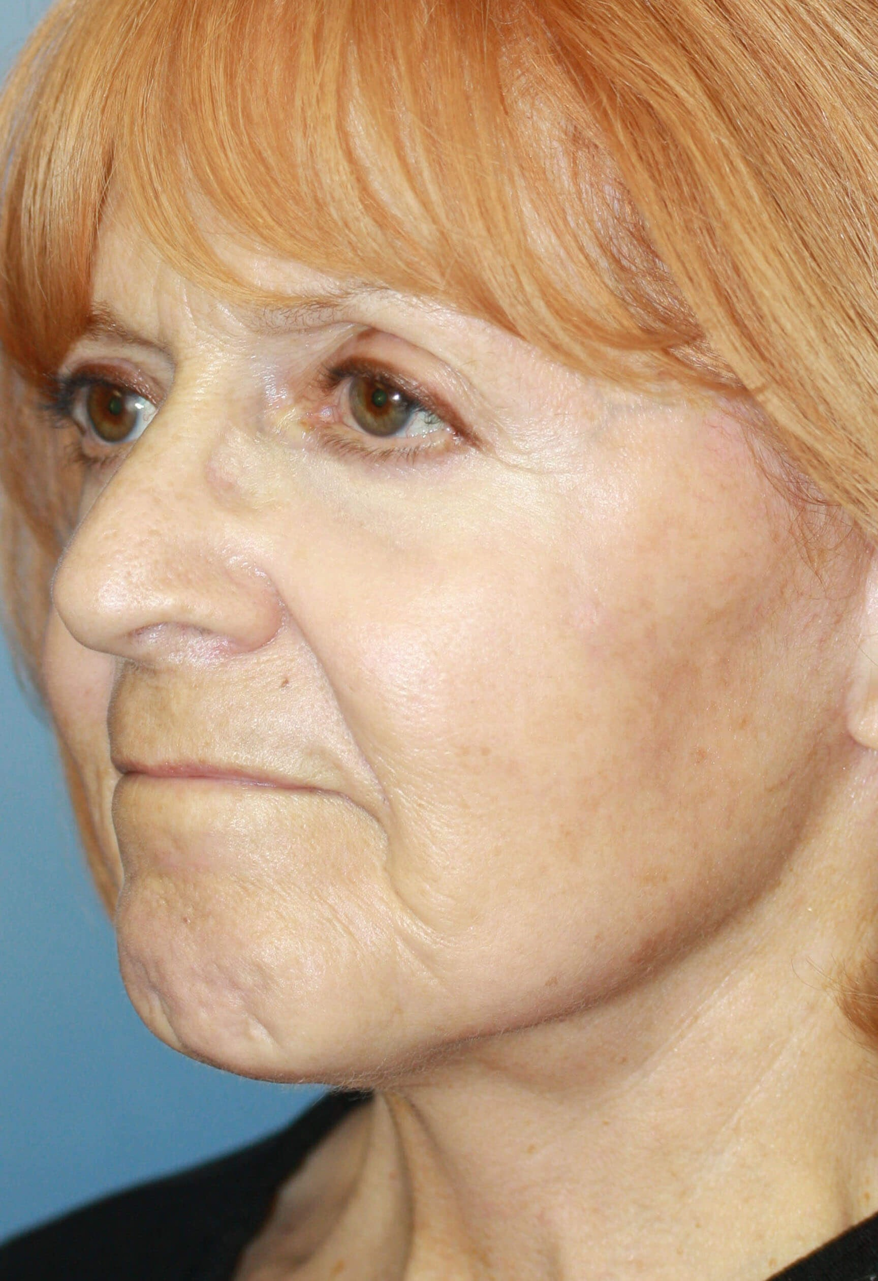 Profile Before and After After Procedures