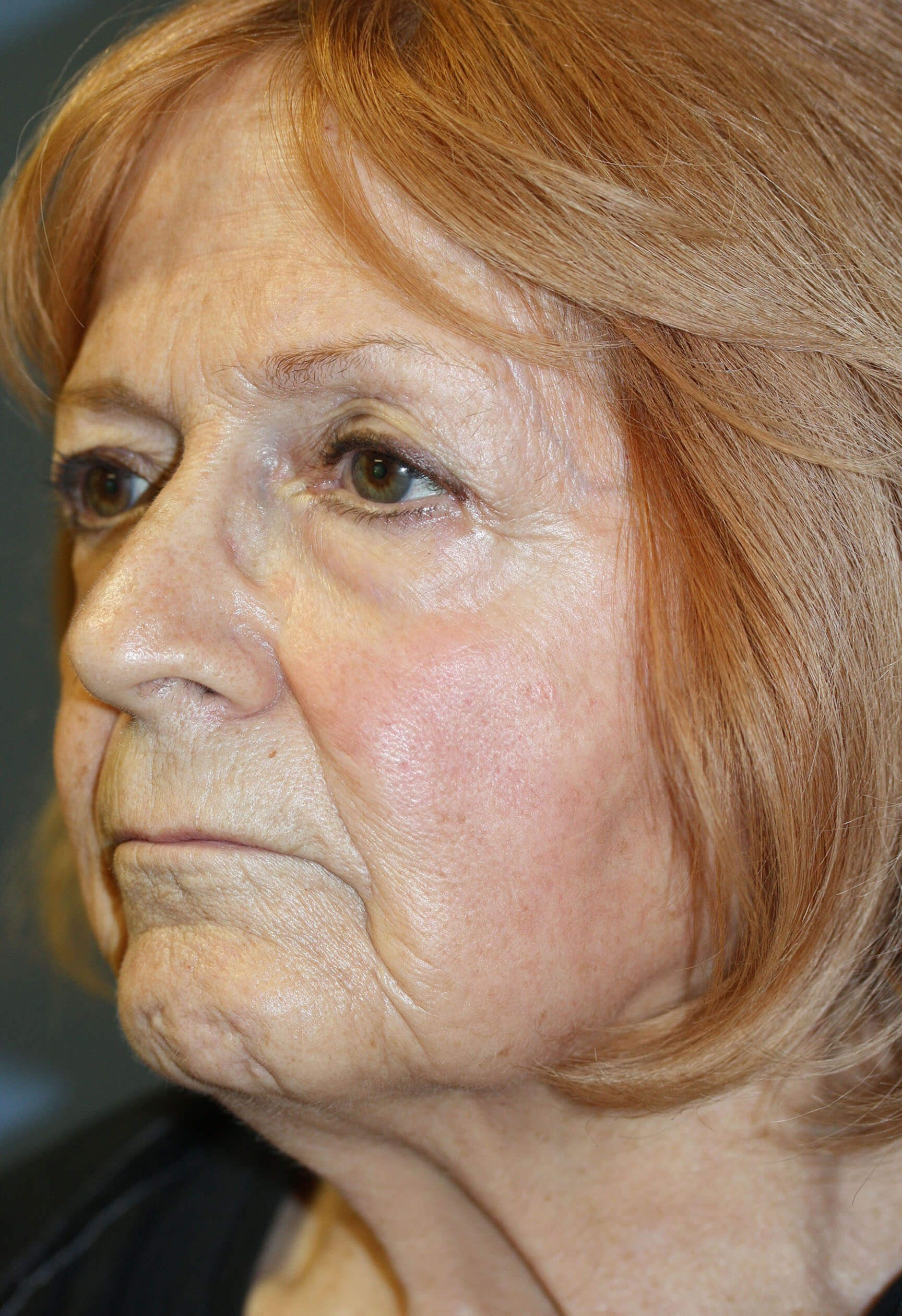 Profile Before and After Before Procedures