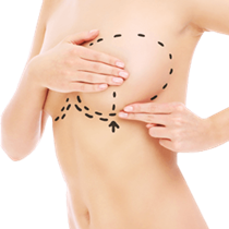 Breast Revision Surgery