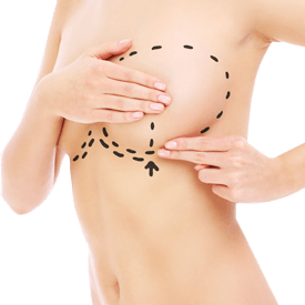 Breast Revision Surgery Image